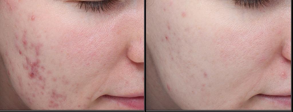 Zmniejszenie trądziku i zaczerwienienia skóry. Efekt po pół roku stosowania prawidłowej pielęgnacji.