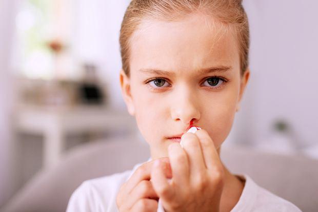 Krwawienie z nosa - przyczyny, postępowanie. Co robić, gdy dziecku leci krew z nosa?