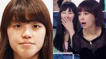'Let me in' to cieszące się ogromną popularnością show emitowane w Korei Południowej. Zgłaszają się do niego kobiety i mężczyźni, którym nie podoba się, to jak wyglądają. Często są to osoby z deformacji twarzy, takimi jak wysunięta szczęka czy guzowatość nosa. Przechodzą szereg operacji plastycznych, których efekty prezentowane są publiczności i jurorom w studiu. Zobaczcie najbardziej spektakularne metamorfozy.