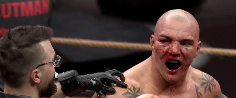 """Dyskwalifikacja! Sędzia przerwał walkę, a Szpilka nie dowierzał. """"Zje***ł"""""""