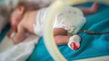 Dzieci z ciąż wielorakich najczęściej rodzą się przed czasem.