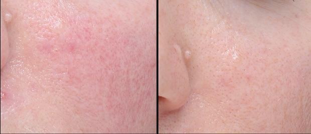 Eliminacja łojotokowego zapalenia skóry i zwężenie porów po zastosowaniu prawidłowej pielęgnacji kosmetykami.