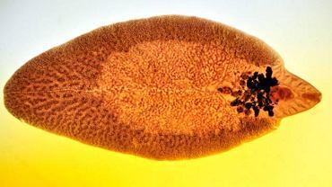 Pasożytem odpowiedzialnym za wystąpienie choroby jest tzw. motylica wątrobowa