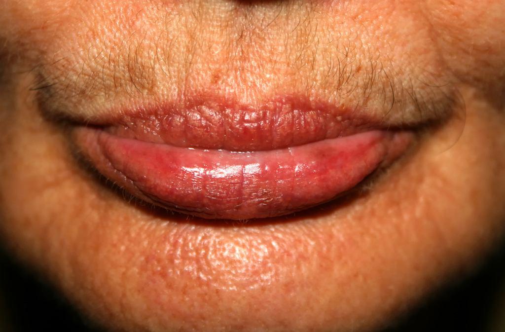Hormony płciowe warto zbadać, jeśli zaobserwujesz u siebie niepokojące objawy, takie jak zaburzenia miesiączkowania, krwawienia między miesiączkami, bóle podbrzusza, problemy z płodnością, nadmierne owłosienie, ale także spadek nastroju i obniżenie libido