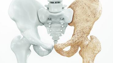 Określenie osteoporozy jako 'złodziejki kości' nie jest przesadzone
