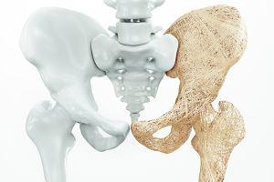Leki na osteoporozę wydłużają życie. Nie zapominajmy ich zażywać - apelują naukowcy