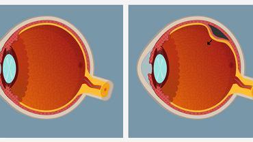 Odwarstwienie siatkówki to stan, w którym dochodzi do odczepienia się siatkówki od nabłonka barwnikowego. Schorzenie może doprowadzić do całkowitej utraty wzroku