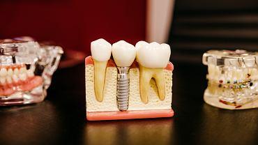 Sennik: zęby. Co oznacza sen o zębach?