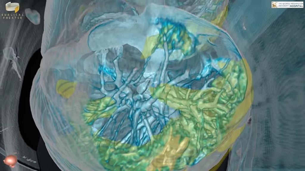 Skany płuc pacjenta zakażonego koronawirusem. Żółty kolor pokazuje obszar płuc zajęty infekcją.