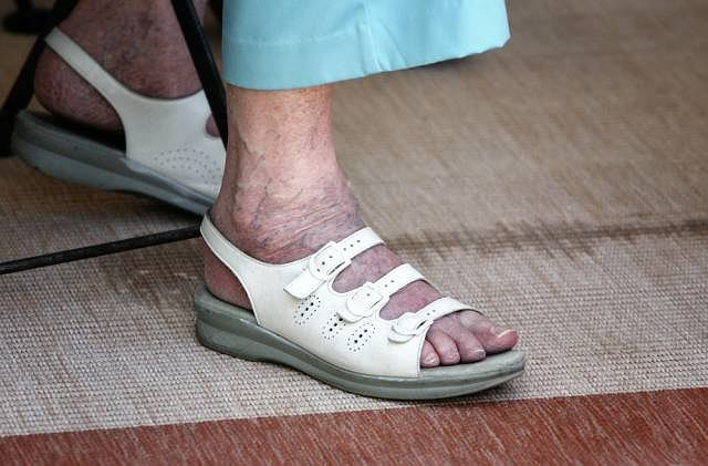 Żylaki, czyli delikatne niebieskie linie mogą pojawić na również na stopach. Z ich powodu cierpią przede wszystkim kobiety