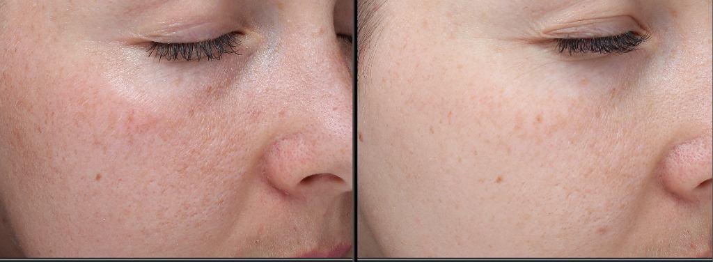 Prawidłowe nawilżenie skóry, rozjaśnienie kolorytu, zwężenie porów.
