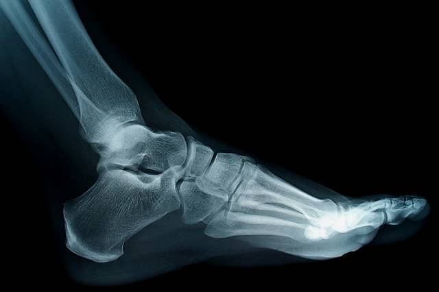 Złamanie kości śródstopia występuje zazwyczaj u sportowców i wiąże się całkowitym unieruchomieniem kończyny nawet na 20 tygodni