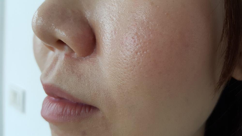 Sebum to nic innego jak łój, czyli naturalna wydzielina skóry, która zapewnia jej prawidłowe nawilżenie oraz ochronę