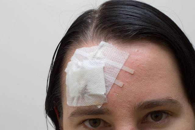 Większość urazów głowy kończy się otarciem lub stłuczeniem, tym samym wizyta u lekarza nie jest konieczna