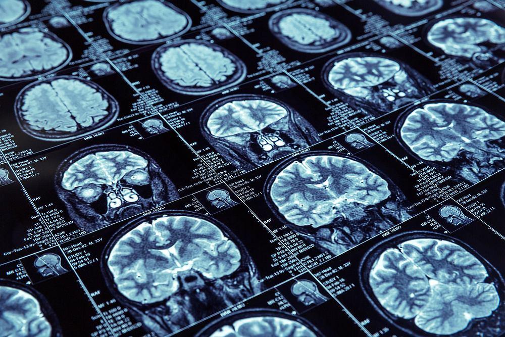 Martwica mózgu