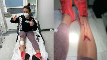 Joanna Jędrzejczyk (UFC) w szpitalu po kontuzji doznanej na treningu. Źródło: Instagram