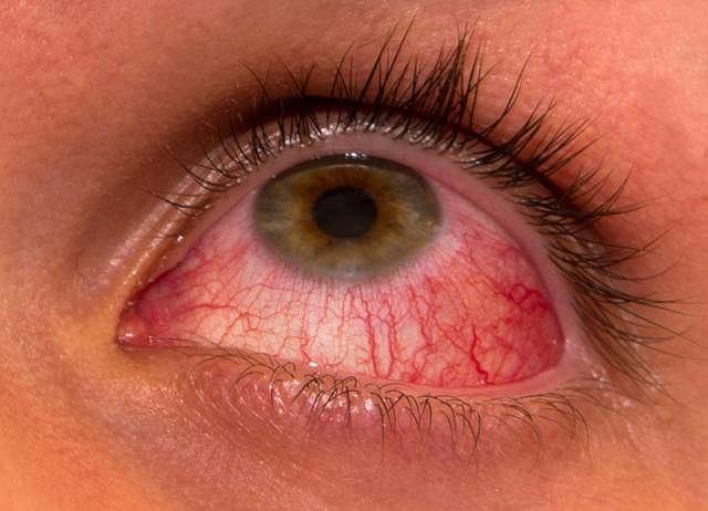 Jednym z objawów zespołu Reitera jest zapalenie spojówek
