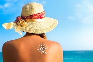 Oparzenia słoneczne: jak się przed nimi chronić i jak je leczyć?