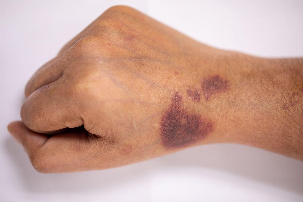Siniaki na skórze o niejasnym pochodzeniu to charakterystyczne objawy hemofilii,