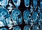 Holendrzy alarmują: tomografia komputerowa zwiększa ryzyko wystąpienia guzów mózgu. Jest się czego bać?