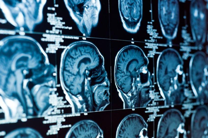 Tomografia komputerowa głowy