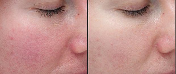 Widoczne zmniejszenie zaczerwienienia i podrażnienia skóry.