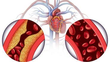 Przewód tętniczy Botalla