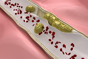"""Cholesterol LDL. """"Złe"""" oblicze cholesterolu, które ma swoje plusy"""
