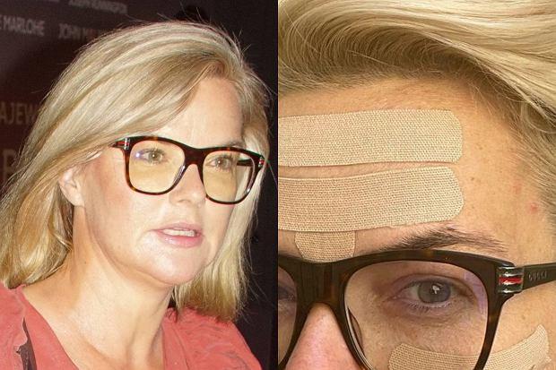 Monika Richardson pochwaliła się na Instagramie zdjęciem, na którym jej twarz pokryta jest plastrami. O co chodzi?