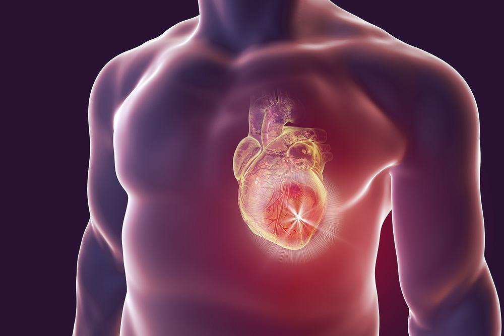 Zapalenie mięśnia sercowego to nic innego jak stan zapalny, który toczy się obrębie serca