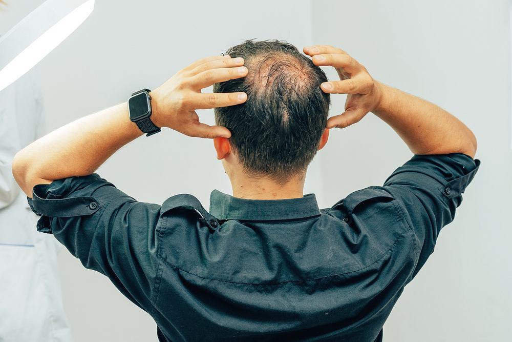 Sennik - łysienie. Zdjęcie ilustracyjne