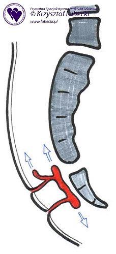 Torbiel krzyżowo-ogonowa, postęp choroby