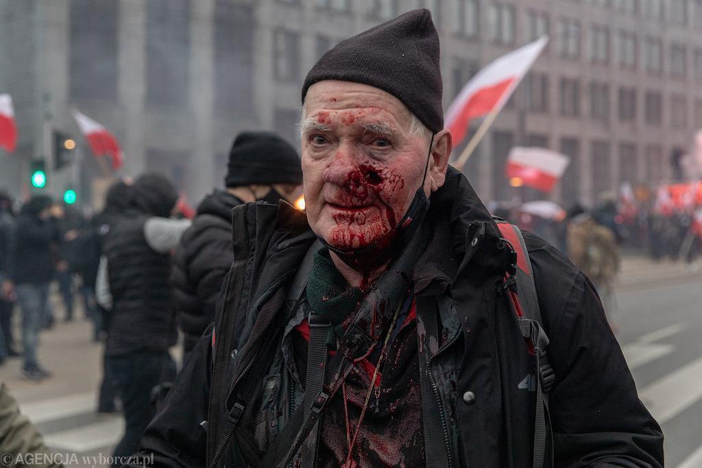 Tomasz Gutry, fotoreporter 'TS', raniony gumową kulą