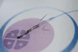 Jest alternatywa dla in vitro. Zamiast na szkle, w ciele kobiety