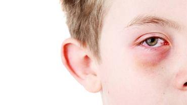 Zapalenie spojówek to częsta reakcja organizmu na silnie działający alergen
