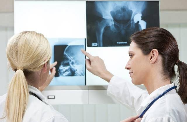 RTG najczęściej wykonuje się po urazach, by stwierdzić, czy nie doszło do złamania kości, ponieważ akurat tkankę kostną świetnie na nim widać