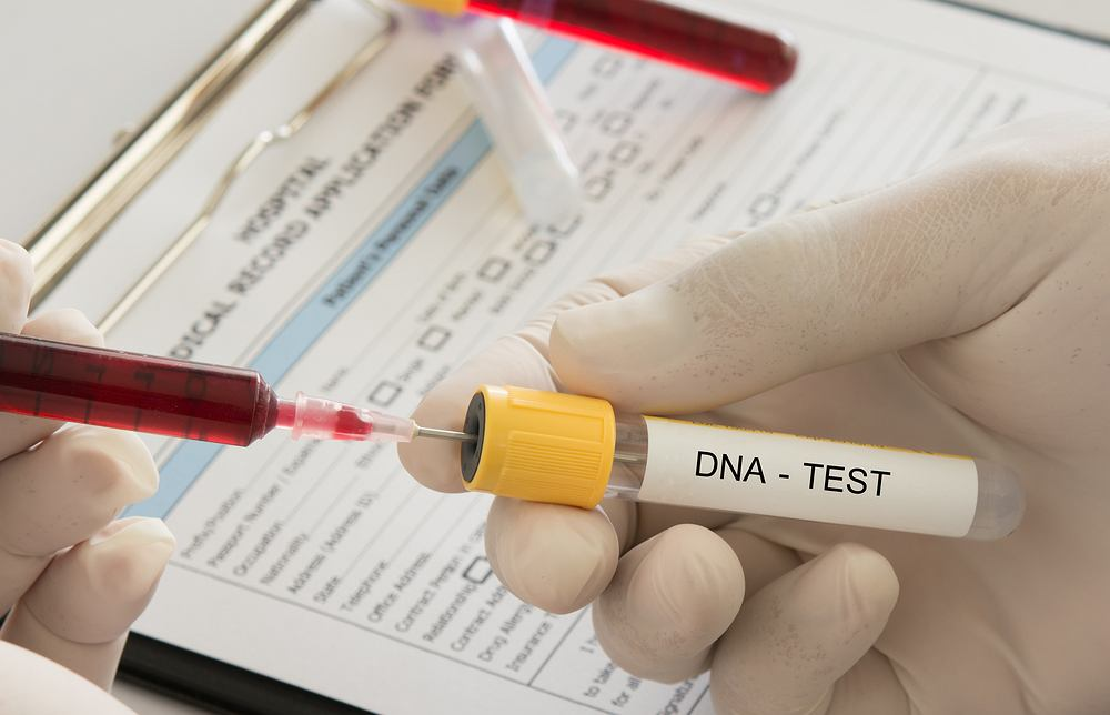 Testy DNA na ustalenie ojcostwa można wykonać w wielu miejscach, także zlecić je przez internet.
