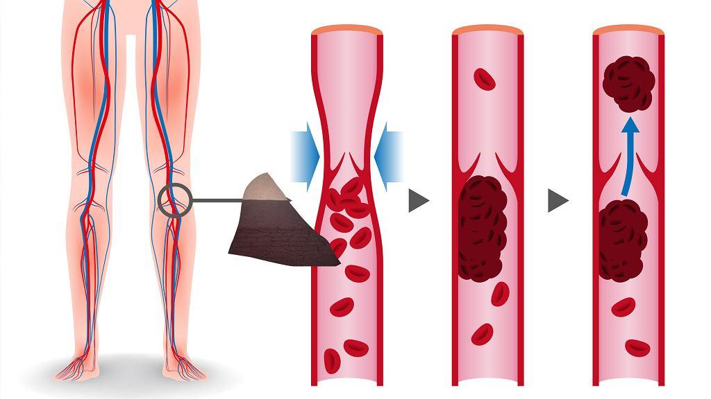 Za prawidłową krzepliwość krwi odpowiadają przede wszystkim enzymy i tzw. czynniki krzepnięcia