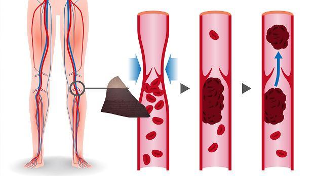 Krzepliwość krwi - na czym polega, jak się ją bada i co mogą oznaczać zaburzenia krzepnięcia?
