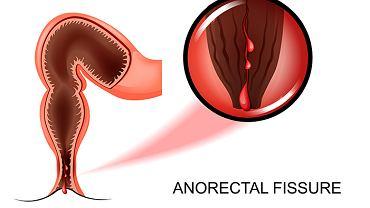 Krwawienie z odbytu może sygnalizować poważną chorobę