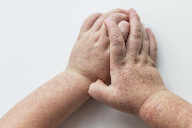 Szkarlatyna - co to za choroba, jakie daje objawy, jak wygląda leczenie?