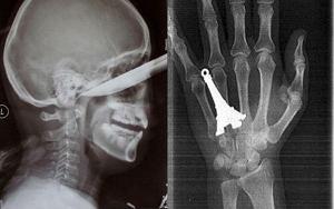 Zdj. rentgenowskie