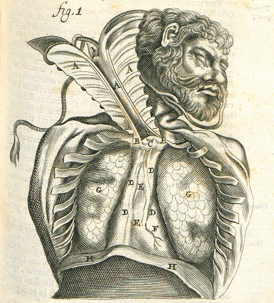 Odcięty mostek (A), płuca (G), przepona (H). Powróz na szyi jednoznacznie wskazuje na pochodzenie ciała, na którym przeprowadzono sekcję.
