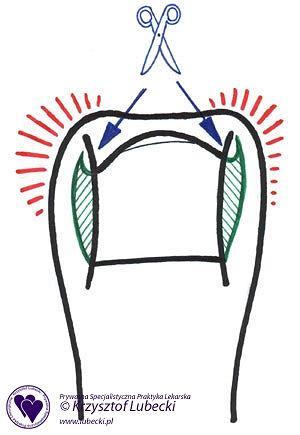 Nieprawidłowe obcinanie paznokci u nóg