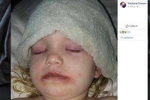 """Przez kosmetyk dla dzieci trzylatka trafiła do szpitala. """"Oczy były spuchnięte, całe ciało pokryła wysypka"""""""