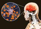 Zapalenie mózgu - jak do niego dochodzi? Czy jest niebezpieczne i jak wygląda leczenie tego schorzenia?
