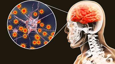 Zapalenie mózgu, czyli stan, w którym doszło do zapalenia miąższu mózgu, wraz z zapaleniem rdzenia kręgowego i opon mózgowo-rdzeniowych zaliczane jest tzw. stanów zapalnych układu nerwowego