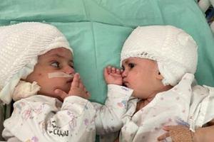 W Izraelu rozdzielono bliźniaczki syjamskie zrośnięte głowami. Operacja trwała 12 godzin