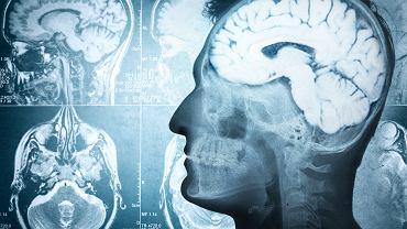 Odkryto 'podpis psychologiczny' osób o skrajnych postawach społecznych, politycznych lub religijnych