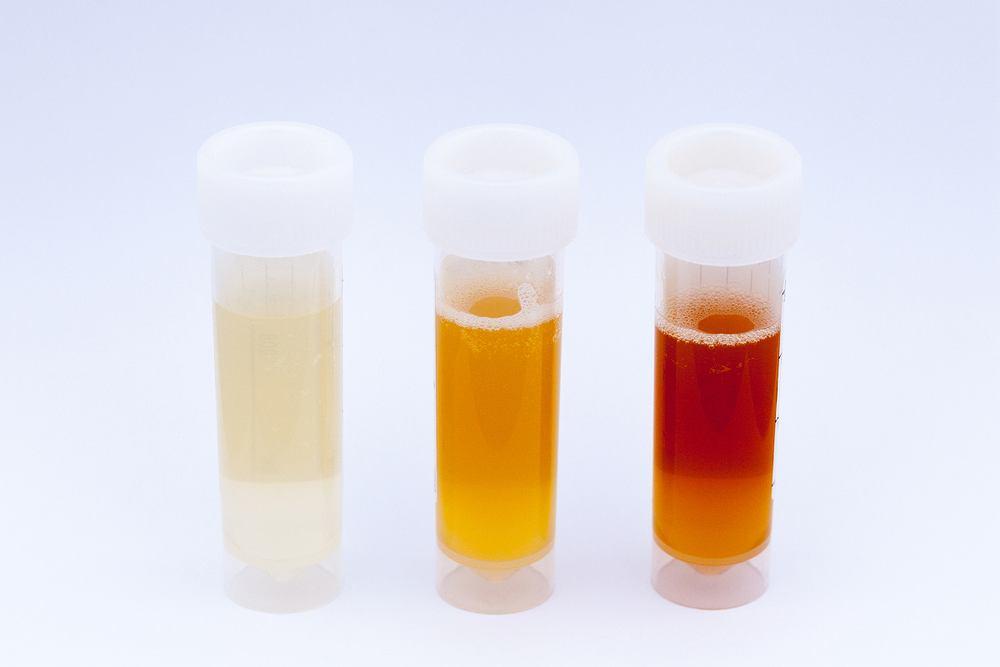 TBMD - jednym z objawów tej choroby jest krwiomocz